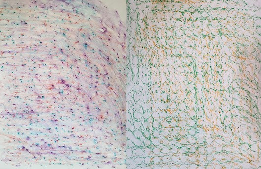Multi-colored texture rubbings, one bumpy and one with defined circles.